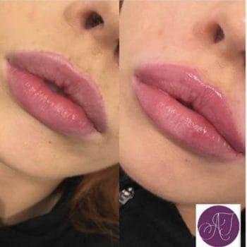 Lip Enhancement Fillers