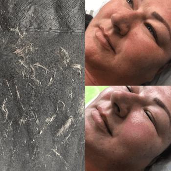 Dermaplaning Facials