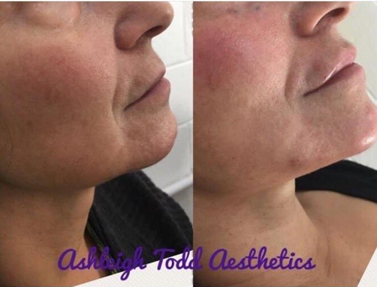 Facial Sculpting Treatment before-after