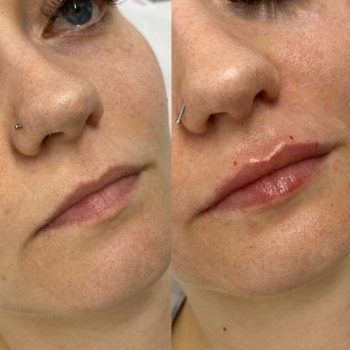 Lip Filler Treatment before-after
