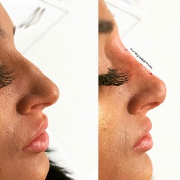Non-surgical rhinoplasty treatment before-after